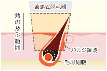 蓄熱式医療レーザー脱毛機の仕組み