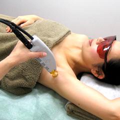 医療レーザー脱毛の施術の様子
