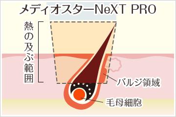 メディオスターNeXT PROによる医療脱毛の照射イメージ